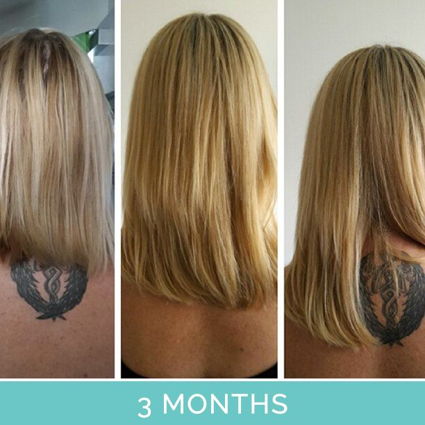 hairburst before and after pictures