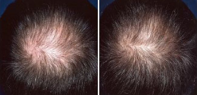 regaine for men before and after