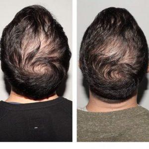 nutrafol-men-before-after-pics
